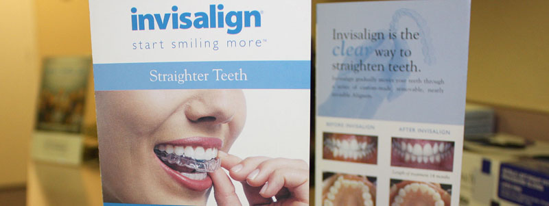Invisalign | The CLEAR way to straighten teeth