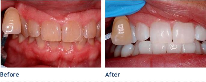 kool white teeth whitening instructions