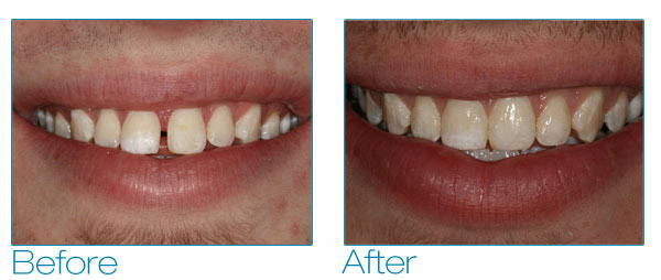 Teeth Straightening Before And After Straighten And Align Teeth
