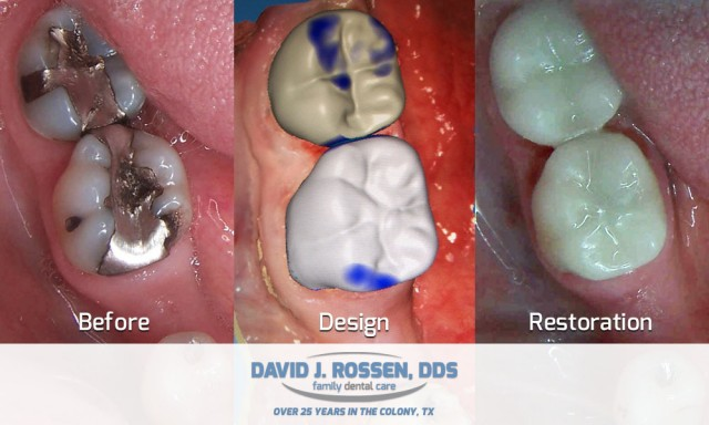 Cerec Crowns Before Design Restoration