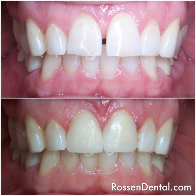 Closed Gap with Veneers