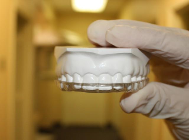 nighguard-loose-teeth