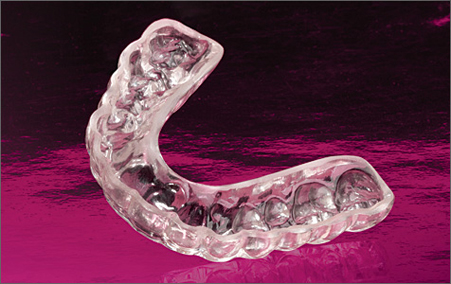 how to clean mold.of dental mouthguard