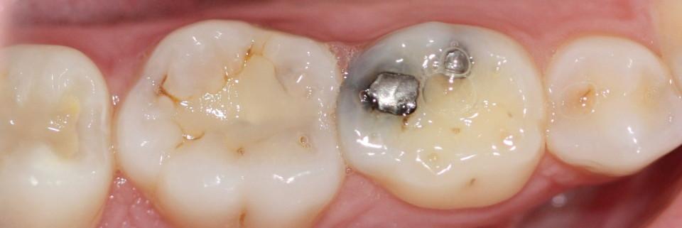 Silver Amalgam Filling