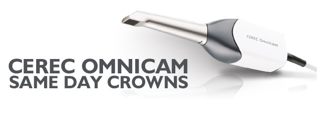 CEREC Omnicam Same Day Crowns, The Colony, TX Dentistry