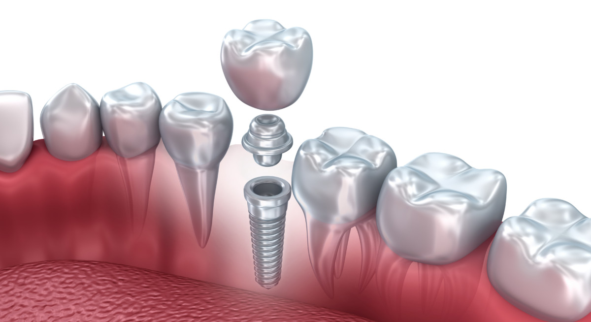 dental-implants-the-colony-tx