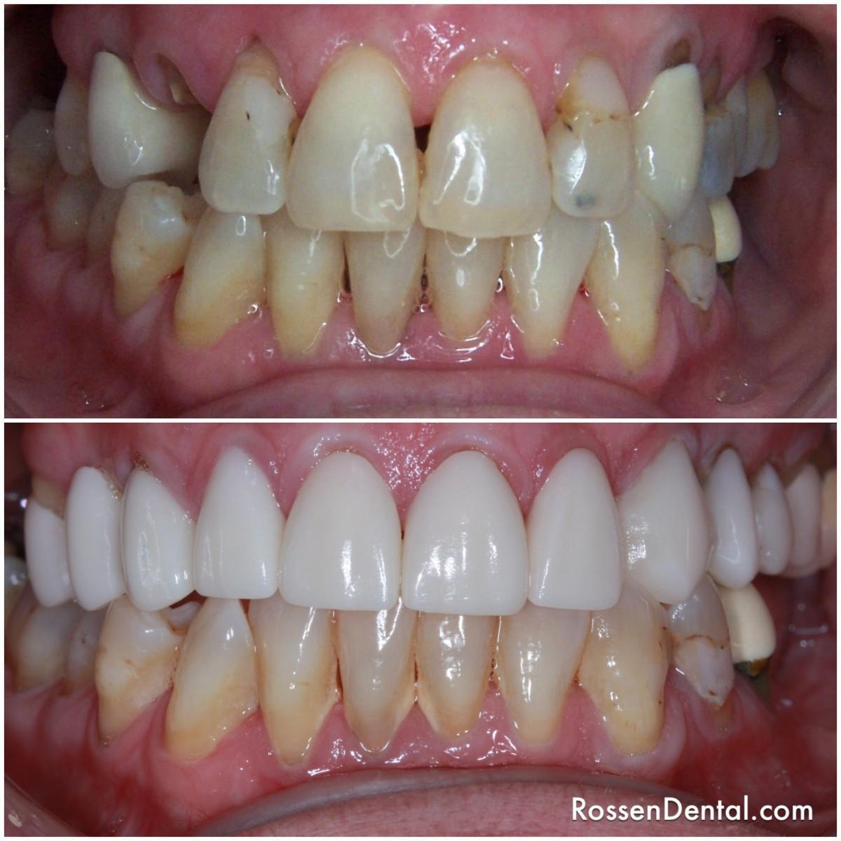 Anterior Bridge Transforms Your Smile