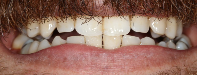 gum disease after