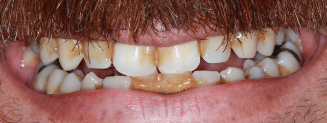 gum disease before