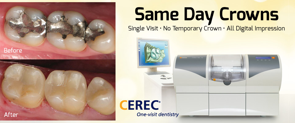 Cerec-Same-Day-Crowns